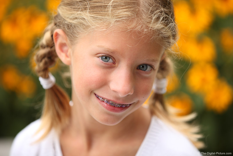 Braces and Braids Picture